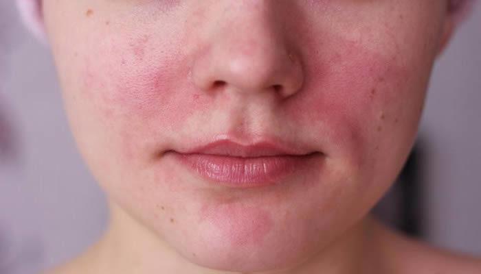 Rosacea Symtomps Causes Treatment Dr Hm Liew Skin Clinic