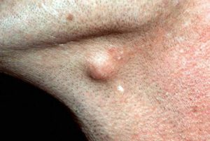 Epidermal (Epidermoid) Cyst